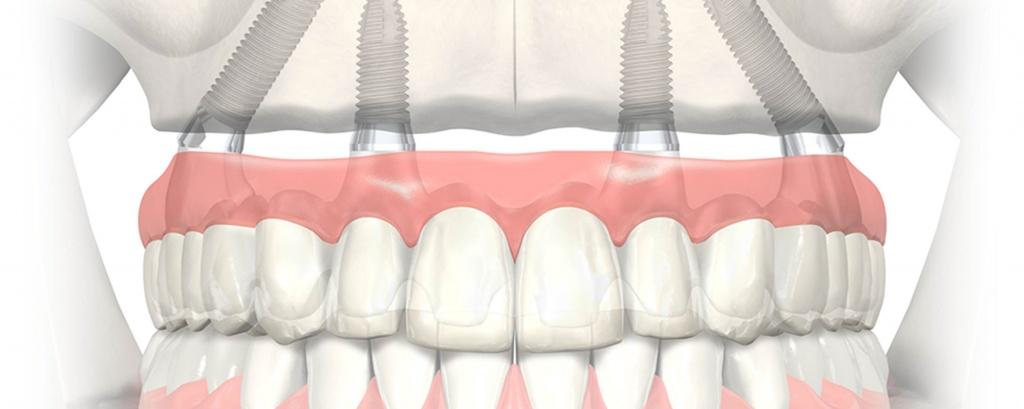 Как импланты ощущаются во рту