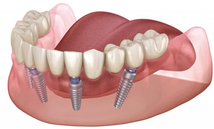 Почему стоит выбрать имплант Osstem