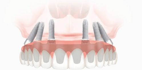 Почему стоит выбрать импланты Osstem: